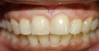 The gap was then closed using composite bonding procedure.