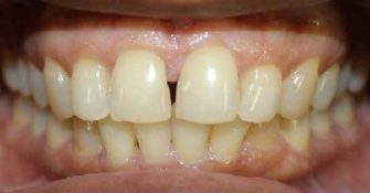 Patient came with complain of gap in his front teeth.