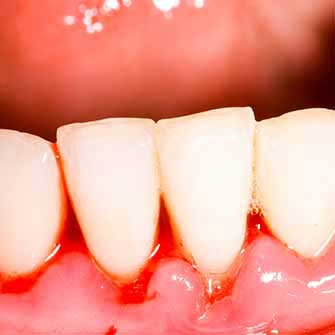 Why Do My Gums Bleed On Brushing?