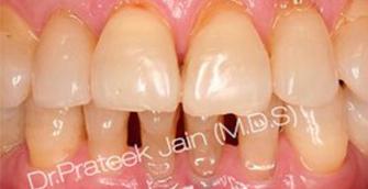 implants immediate by Dr. Prateek Jain