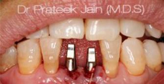 implants_immediate facekraft 335x172