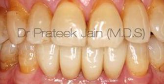 implants_immediate image 3