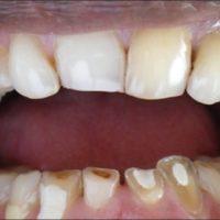 Lower Anteriors Deep Bite (2)
