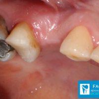 1-Implant 1st Premolar