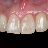 1-implant lateral incisor