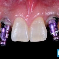 12-implant lateral incisor