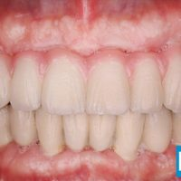 13-Implant supported fixed teeth