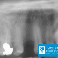 2-Implant 1st Premolar