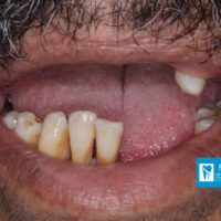 2-Implant supported fixed teeth