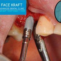 3-Implant 1st Premolar
