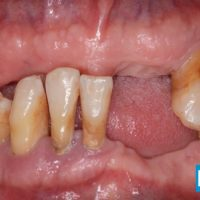 3-Implant supported fixed teeth