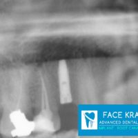 4-Implant 1st Premolar