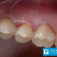 7-Implant 1st Premolar