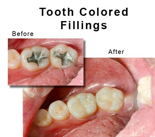 Cosmetic tooth coloured Fillings facekraft