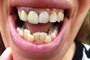 Crooked teeth facekraft