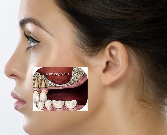 Sinus Lift Surgery in Jaipur