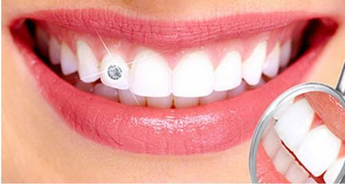 dental-jewellery-facekraft