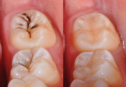 dich-vu-tram-rang-1-White fillings for teeth cavity