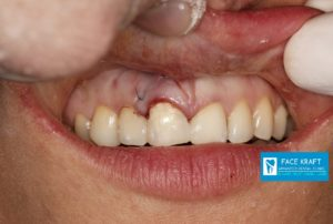 implant front tooth 15