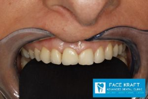 implant front tooth 32