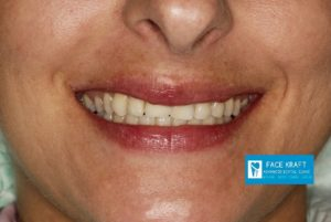 implant front tooth 33