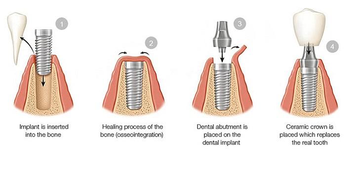 Farnsworth_Dental_Implant_t715