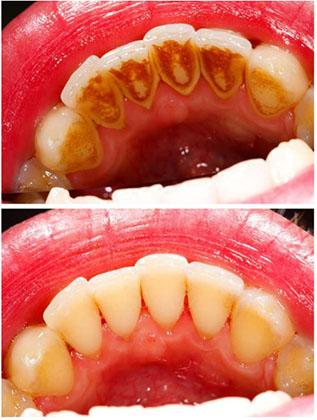 Scaling and Polishing of teeth-1